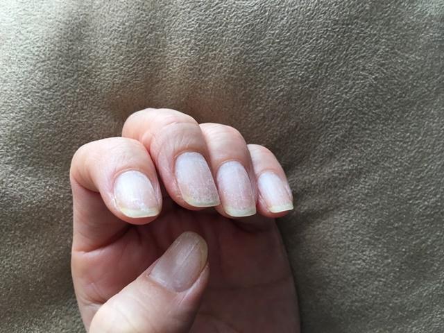 ジェルネイルをはがしたあとの爪